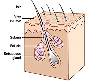 Diagram of the hair follicle and sebaceous gland