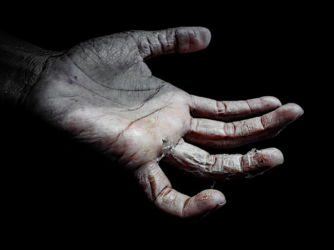 A dry, cracked, peeling hand